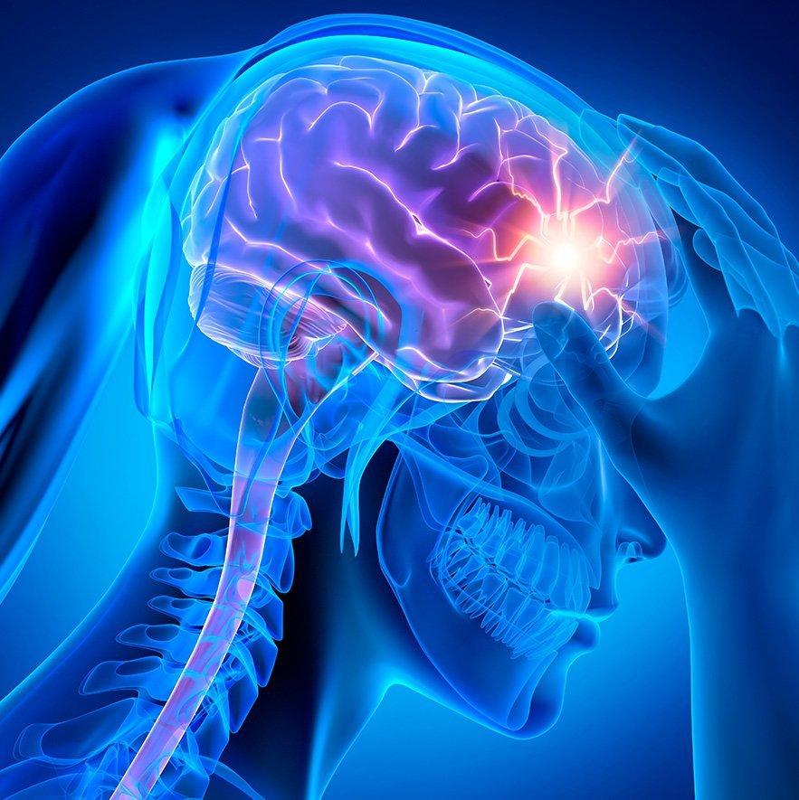 Image of Neurofeedback for Migraine